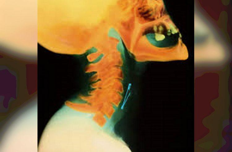 30 увлекательных рентгеновских снимков